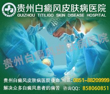 贵州有几家最专业的白癜风医院